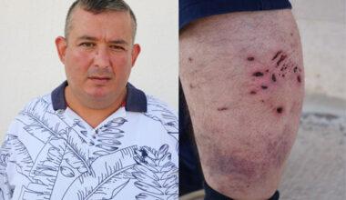 Tatilde pitbull saldırısına uğradı